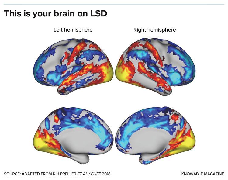 Brain on LSD graphic