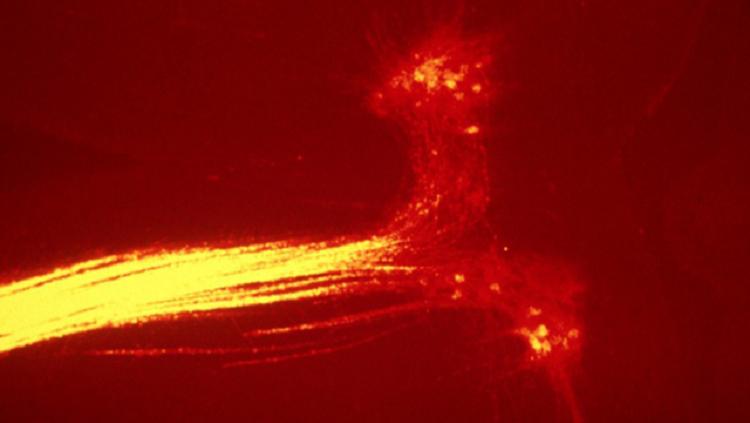 Image of motor neurons in eye