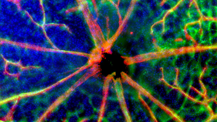 blood vessels and nerves at the optic disk