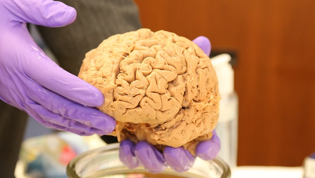 A person holding a human brain.