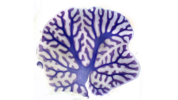 Image of a cerebellum