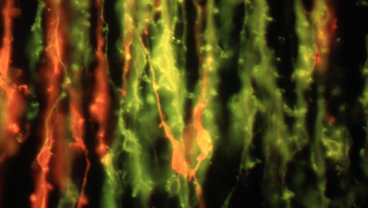 Neurons in red that will become the glossopharyngeal nerve.