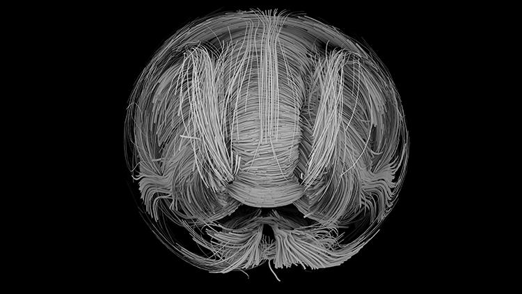 Diffusion magnentic resonance image (DMI) of the brain