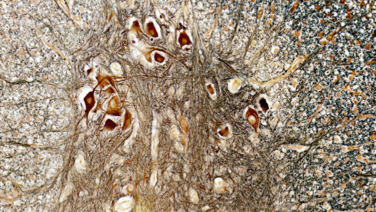 A view of the spinal cord, with large nerve cells running up the spine that can be seen in brown and yellow.