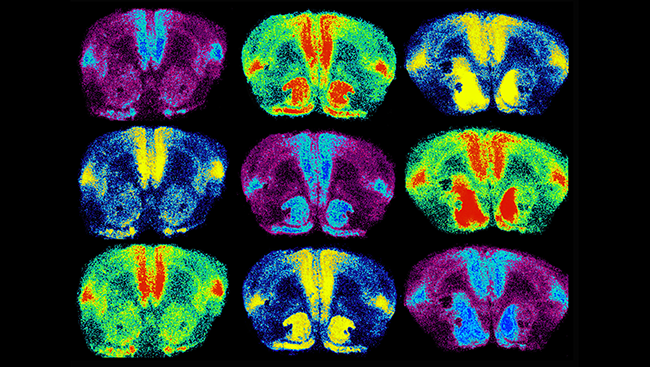 This image shows the brains of monogamous prairie voles, with oxytocin receptors labeled in light blue, red, and yellow. When researchers used genetic techniques to increase oxytocin receptor levels in the brain (right column), they found female voles formed partner preferences faster.