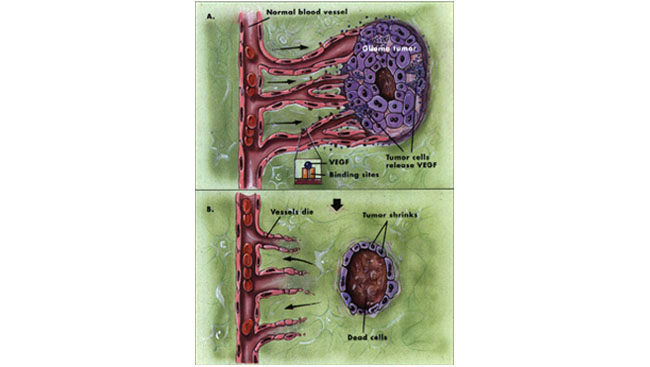 Two illustrations: one of a tumor feed by blood vessels and another of a shrinking tumor cut off from a blood supply