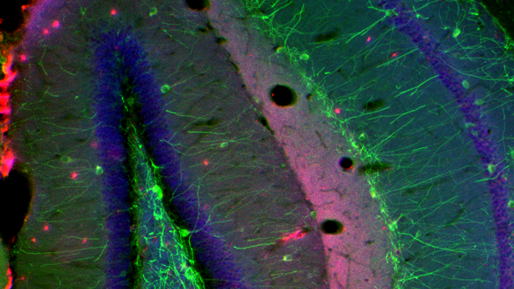 Image of neurons in synapse locations