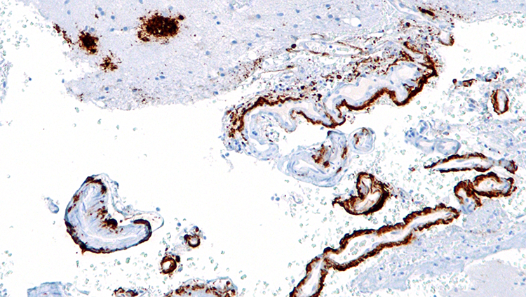 image of amyloid beta