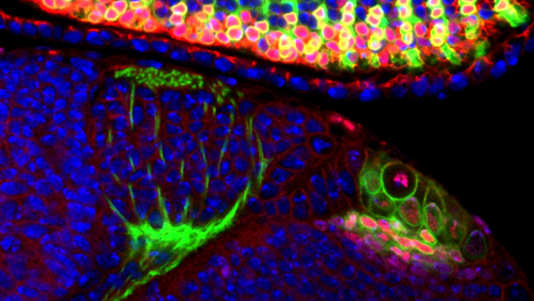 With more than half of its tiny brain devoted to sight, the fruit fly is a favorite animal model for scientists studying the visual system.