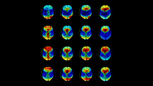 Overlay plots of T1-weighted magnetic resonance images and topographical maps of relative sleep electroencephalography (EEG) power distribution.