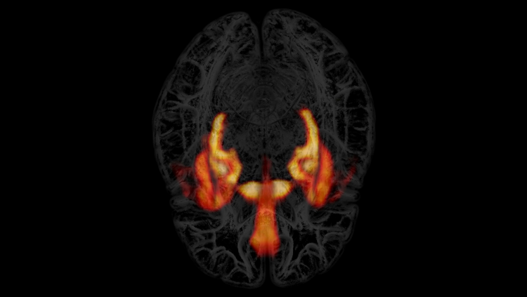 brain with parts lit up orange and yellow
